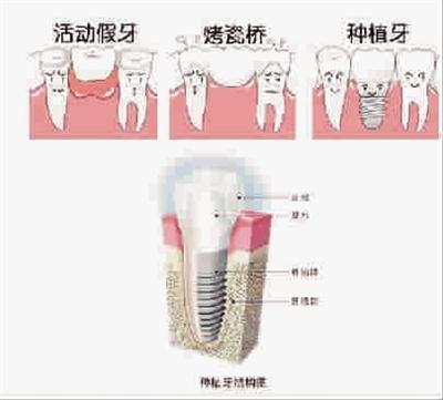 雕第一磨牙石膏牙的步骤图解